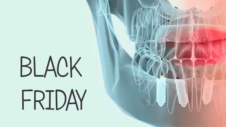 Black Friday en implantología dental